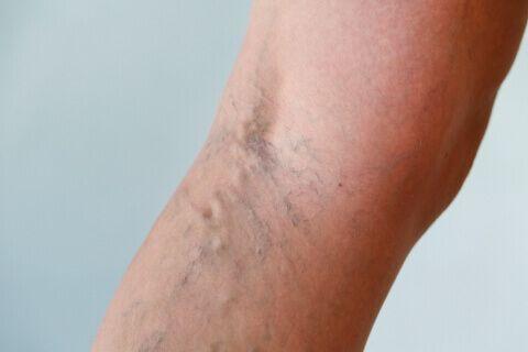gamba con vene varicose