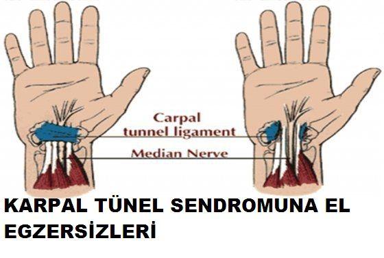 Karpal tünel sendromu bir yada iki elin ilk 3 parmağını tutan ilerleyici özellik gösteren bir hastalıktır .El bileğinin ortasında bulunan ve ilk 3 parmağa yayılan medyan sinirin bası altında kalması sonucu ağrı ,uyuşukluk ve...