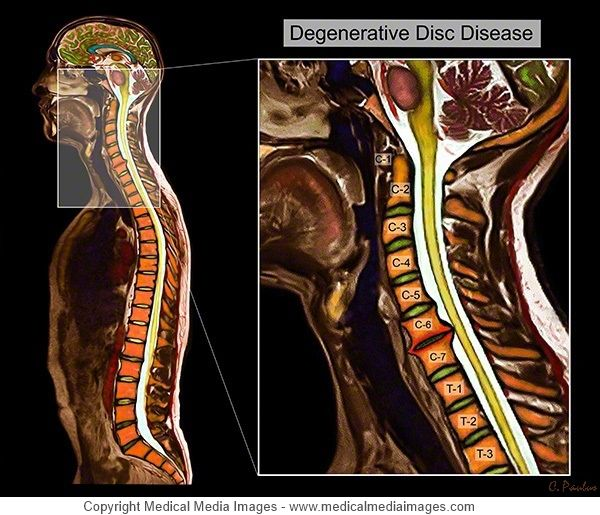 Color MRI of the Cervical Spine showing Degenerative Disc Disease (DDD). A novel, advanced visual tool to see and understand Anatomy, Disease, and Surgery. http://www.medicalmediaimages.com/interactive-color-mri-cervical-disc-degeneration-ddd/846