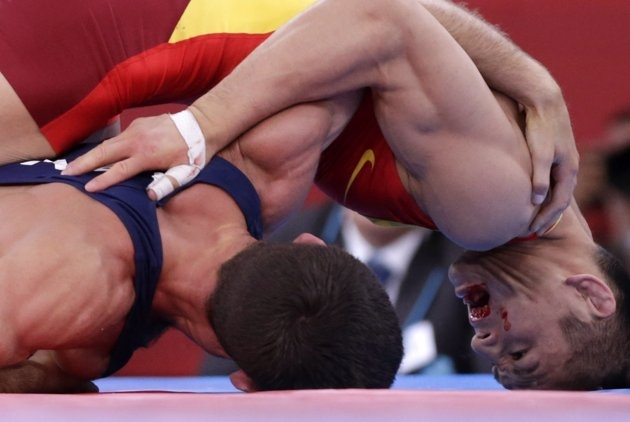 Injured Olympians: Blood, bruises and tears - Azerbaijan's Rovshan Bayramov (in blue) fights with China's Shujin Li on the Men's 55Kg Greco-Roman wrestling at the ExCel venue during the London 2012 Olympic Games August 5, 2012. REUTERS/Toru Hanai