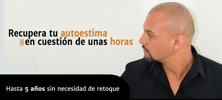 Micropigmentación capilar México. Micro Pigmentación del cuero cabelludo. Guadalajara, DF, Ciudad de México, Monterrey - INICIO