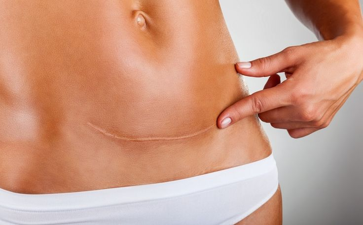 A C-section can wreak havoc on your abs, this post gives you 6 things you need to do to get rid of the little pouch a C-section creates.