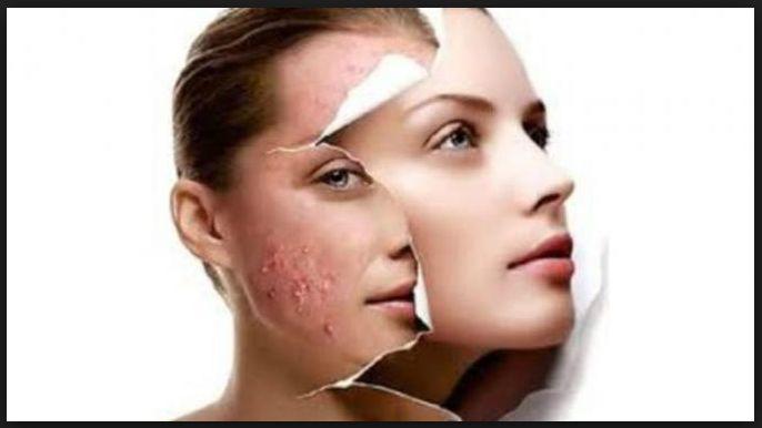 Jerawat merupakan masalah kulit yang umum dialami setiap orang. Berikut 16 Cara untuk Hilangkan Jerawat di Muka dan Tips Produk yang tepat untuk Jerawat