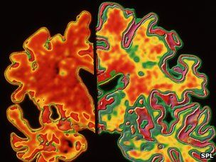 Alzheimer's research  http://www.bbc.co.uk/news/health-16945466