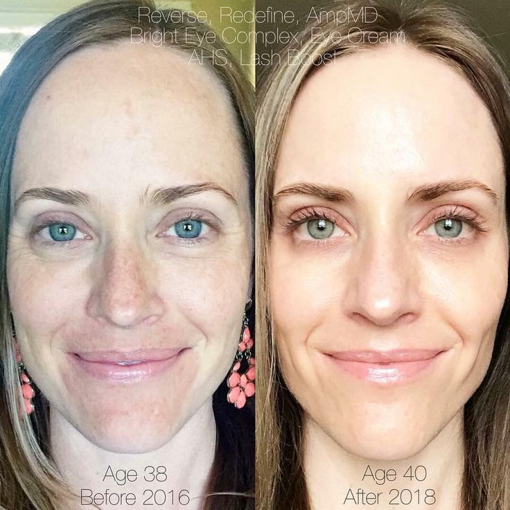 "Perhaps 40 IS the new 20? Look at these results after using Rodan+Fields skincare for almost 2 years."" • Skin discoloration GONE (thanks Reverse!) • Puffiness and crows feet almost non-existent (Bright Eyes and Eye Cream) • Fine lines and wrinkles substantially diminished (Redefine+AmpMD) • A super hydrated GLOW ✨ (Active Hydration Serum) • And longer, darker, fuller-looking lashes (Lash Boost!)."
