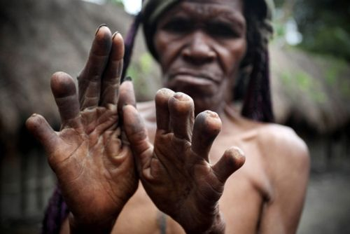 Woman of the traditional Dani tribe shows her amputated fingers in Wamena, West Papua, Indonesia. The primitive tribe still lives a very traditional existence, due to the remoteness of its location. The tribe were once famed as a head-hunting tribe and still demonstrate specific customs today, including the women cutting off segments of their fingers whenever a relative dies.