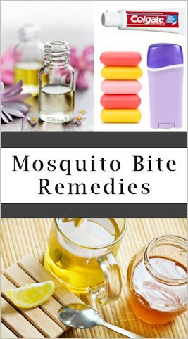 Over 40 Mosquito Bite Itch Relief Tips.
