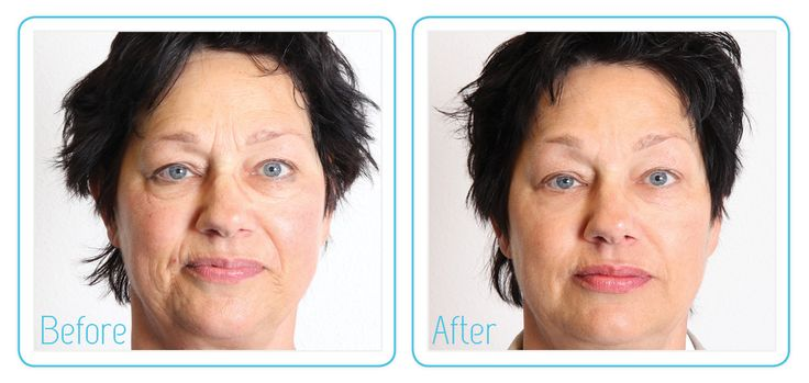 See our amazing #MetaTherapy before and after results. #Dermatude #MedicalSpa #Esthetician