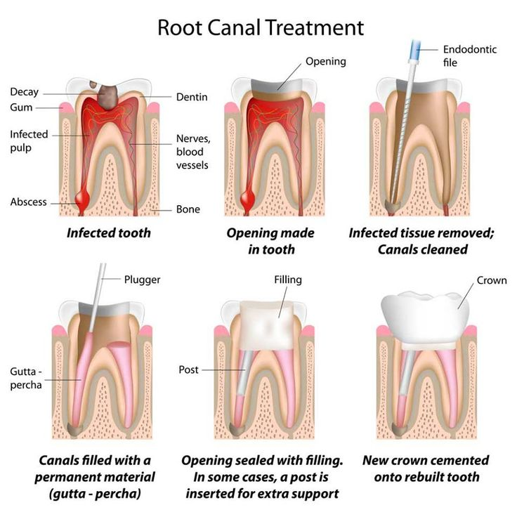 Root Canal Treatment consists of removing the infected pulp and filling the canals with gutapercha (root filling material).
