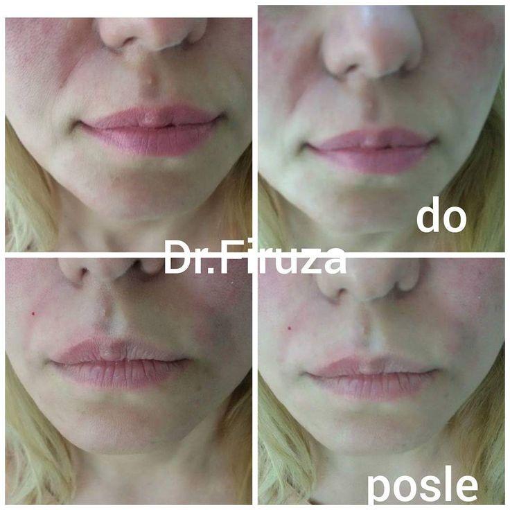 Konturnaya plastika nosoqubnix borozd!#dr#fira#lyublyu#svoi#roboti#cosmetology http://tipsrazzi.com/ipost/1523987615257596548/?code=BUmSqlhhhKE