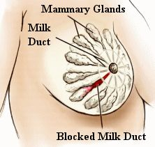 Find home remedies for blocked milk ducts. Learn about the main symptoms of a plugged milk duct and what causes them to become clogged.