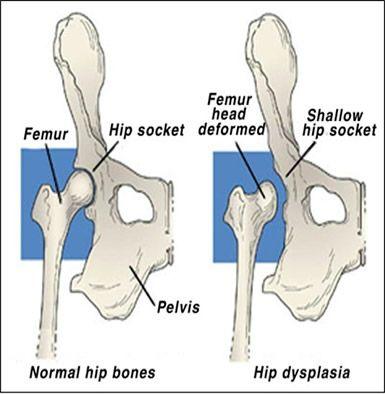 deep hip socket vs shallow hip socket - Google Search