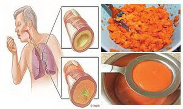 Say Goodbye To Cough Phlegm Flu Clean The Lungs Forever With This Old Remedy – Top Natural Medicaments
