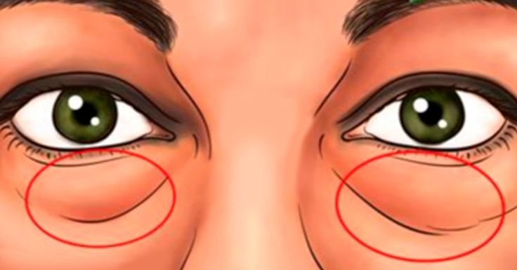 Мешки под глазами старят вас и очень портят внешний вид? Преобразить, разгладить, улучшить нежную кожу под глазами помогутсамые простые средства! Некоторые люди чаще других имеют темные круги или отечность подглазами. Усталость, недостаток сна и стресс являются одними из наиболее распространенных факторов, которые оказывают большое влияние на возникновение таких проблем. Со временемони начинает накапливатьжир и жидкость, …
