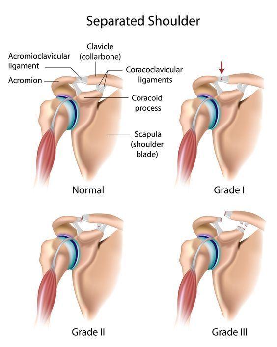 Shoulder Separation (AC Joint Sprain, AC Joint Separation)