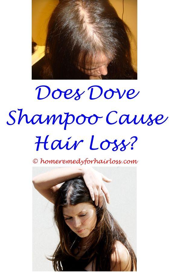 cat hair loss dry flaky skin - anavar hair loss propecia.where i buy ultra fx 10 hair loss black seed oil against hair loss thyorid symptoms dysphagia hair loss 2055027247