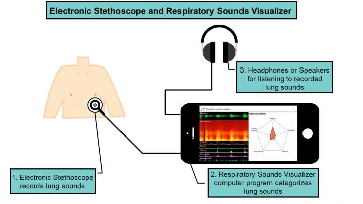 Read about the development of an electronic stethoscope and computer program in Japan, able to assist in the diagnosis of lung diseases.