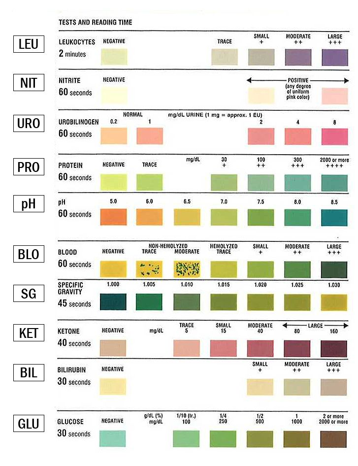 Urinalysis Test Strip Color Chart | Learn.Parallax.Com | Health