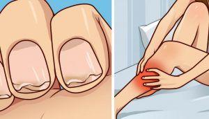 ¿Tiene las uñas débiles? ¿Calambres frecuentes en las piernas? Esto es lo que necesita saber