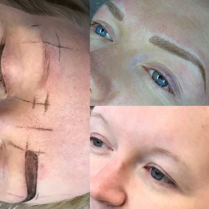 Before & After creating super realistic soft blonde eyebrows on a client at the Million Dollar Brows clinic