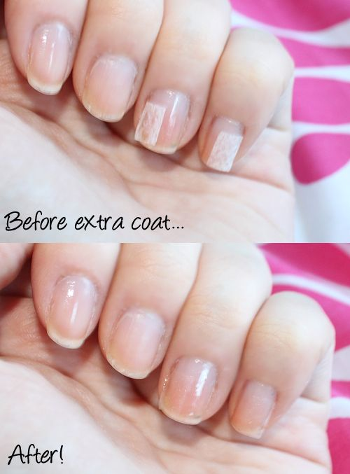 how to fix nails after sleeping