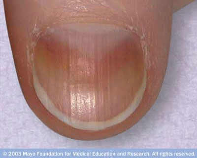 Vertical nail ridges, which run from the cuticle to the tip of the nail, are fairly common. These ridges typically become more prominent with age. Vertical ridging doesn't indicate serious illness.