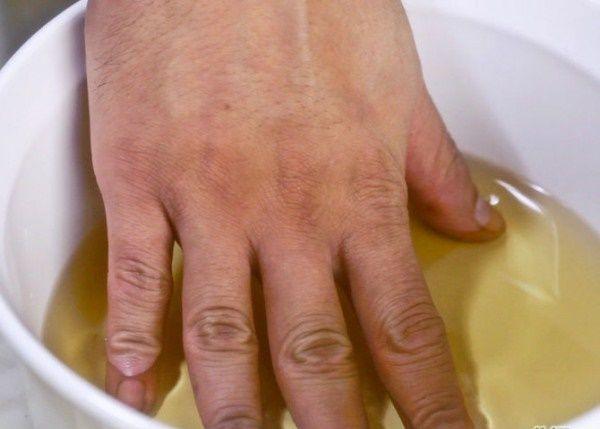 VInagre de maçã p/ artrite e dores nas articulações. 1 xíc vinagre de maçã + 6 xíc água morna. Mergulhe a área afetada na mistura deixando por alguns minutos. O vinagre de maçã t pode ser consumido internamente (1col sopa de vinagre+250ml de água/suco) Neste caso tem que ser um orgânico e de boa qualidade. Beba um copo diariamente.