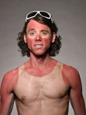 Stock Photo : Portrait of male with bad sunburn