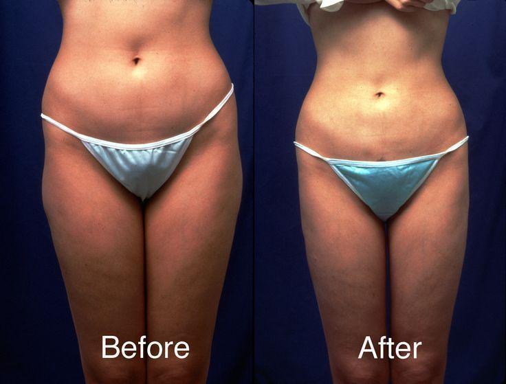 Patientensicherheit Fettabsaugungschirurgie in Beverly MA – – #Beverly #Fettabsa…