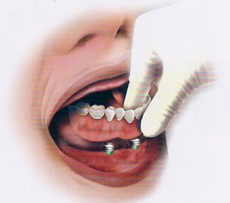 The overdenture is securely fastened to the implant and can snap-on and off for convenient maintenance removal. http://goo.gl/PnDff9
