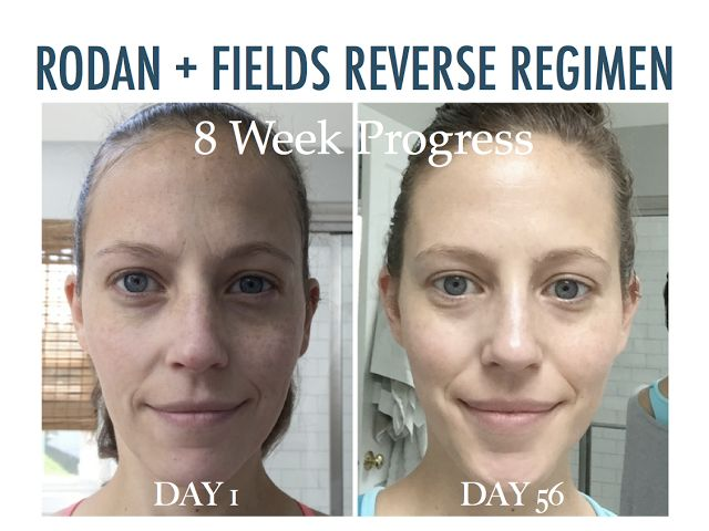 Best 25 Rodan And Fields Reviews Ideas On Pinterest