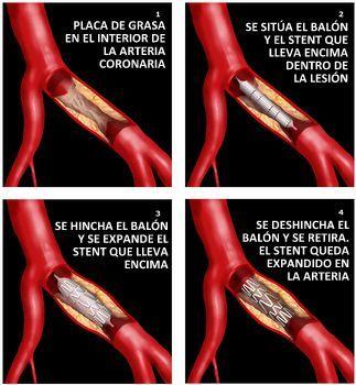 La angioplastia coronaria (ACTP, stent) en los pacientes con insuficiencia cardiaca.
