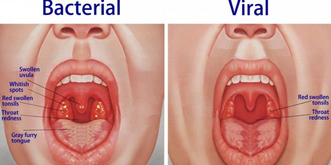 How To Cure Otitis Media Naturally