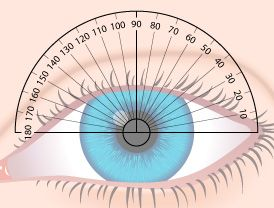 49d60b190020d What Exactly Is Astigmatism    For Choochy   Pinterest   Optometry,  Eyeglasses and Eyes