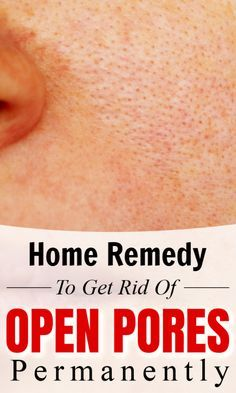 Best Home Remedy to Get Rid Of Open Pores On Skin Permanently