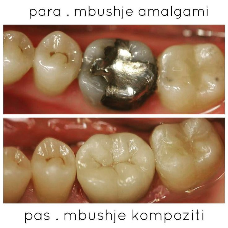 #dentalhygienist #plaque #badbreath#gingivitis #teethwhitening#cosmeticdentistry#sorriso#smile#odontologia#dentist#dentistry#aesthetics#estetica#dental#odontolovers#odontologiaestetica#oralhealth#whitening#dentalwhitening#teethwhitening#toothwhitening#bleaching#dentalbleaching#dentalgram#brushyourteeth by albi_spiro Our Cosmetic Dentistry Page: http://www.myimagedental.com/services/cosmetic-dentistry/ Google My Business: https://plus.google.com/ImageDentalStockton/about Our Yelp Page…