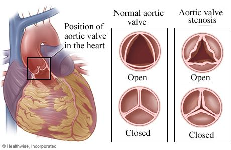 Illustration copyright 2003 Nucleus Communications, Inc. All rights reserved. http://www.nucleusinc.comA normal aortic valve opens fully to allow blood to flow into the aorta. Once stenosis develops, the valve cannot open as wide as necessary, and the heart must work harder to pump blood through the valve. ...