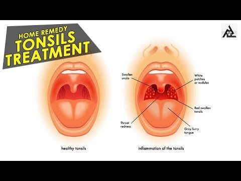 Home Treatment for Tonsillitis… Effective and Easy!!! – Snappy Minds