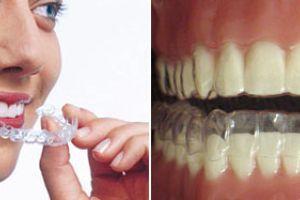 Как выпрямить зубы без брекетов?