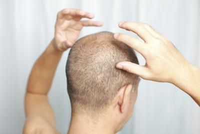 Pure Aloe Vera & Hair Loss