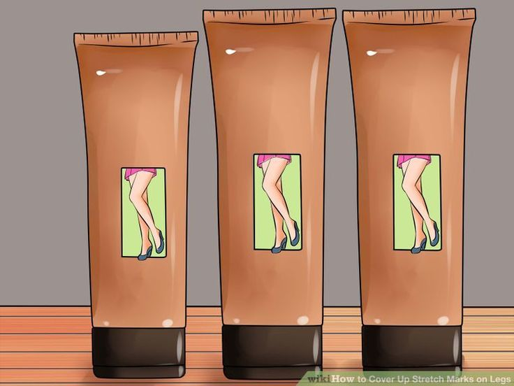 3 Ways to Cover Up Stretch Marks on Legs - wikiHow