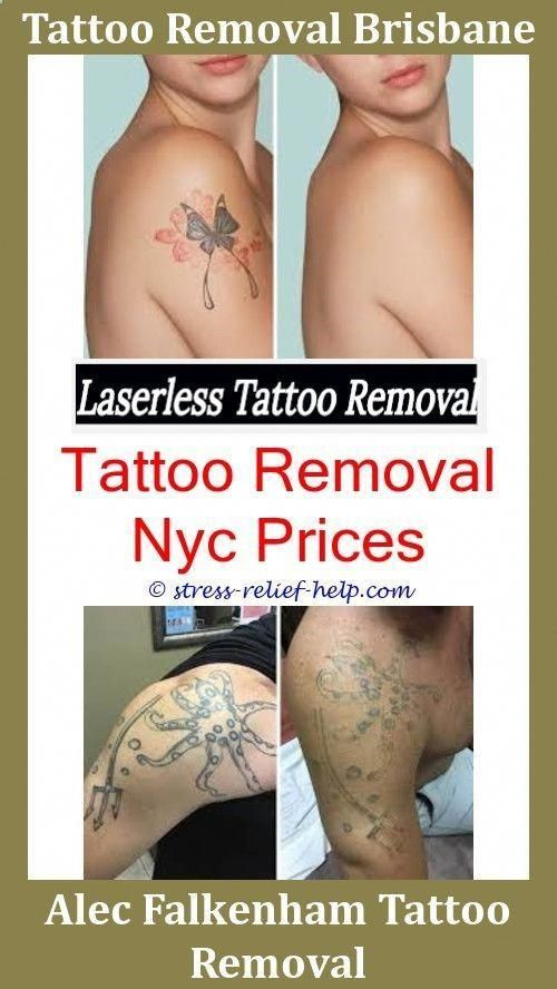 Painless Tattoo Removal Tattoo Removal No Scarspicosecond Laser