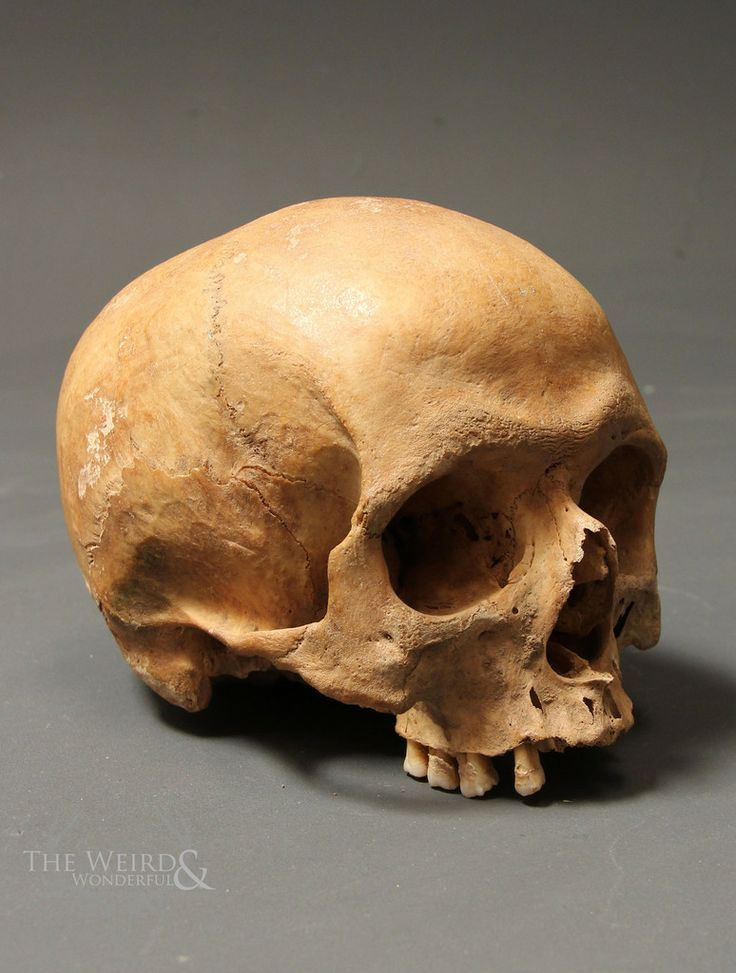 human skull - weird and wonderful | Preservation ...
