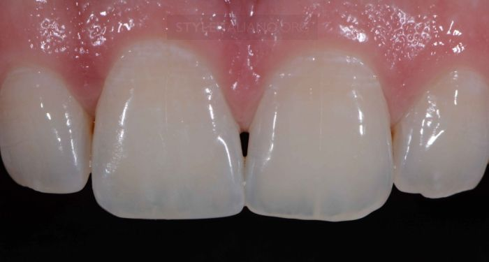 Basic rules for class IV restorations