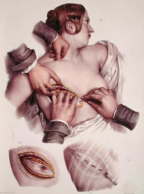 Jacob Nicolas Henri, 1860s  Nicolas Henri Jacob (1782–1871), was a student of the French painter Jacques Louis David. He illustrated the eight-volume treatise, Atlas of Anatomy by French anatomist, Jean-Baptiste Marc Bougery (1797–1849).  Source: Cerebral coffins, Medical Illustrations