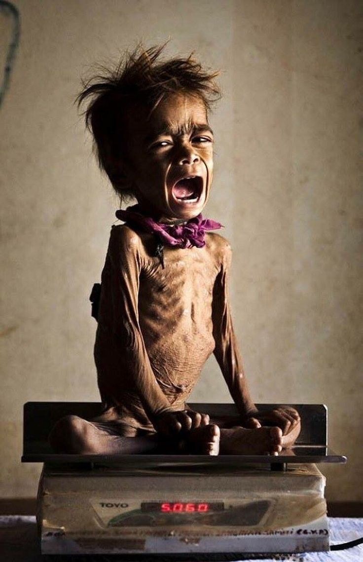 1 in 3 children in Yemen are on the brink of starving to death. This is just one of them..