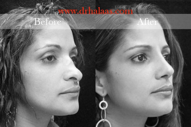 Best rhinoplasty surgeon in new york city Dr. Halaas is experienced with rhinoplasty surgery for nose jobs in nyc and helps nasal surgery patients.