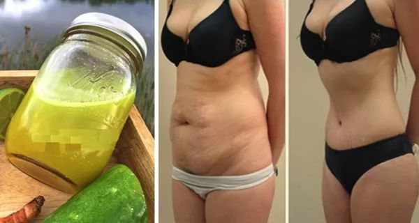 Take 2 Tablespoons a Day of This Natural Remedy and Melt 1 cm of Belly Fat!!