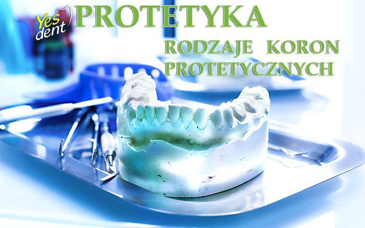 #protetykawrocław #protetyka #ortodoncjawrocław #yesdent #stomatolog #dentysta