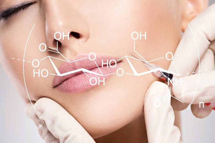 Wie wirkt Hyaluronsäure?
